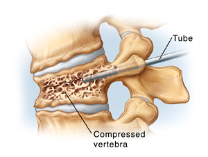 Side view of compressed vertebra and disks. Needle goes through back of vertebra into vertebral body.
