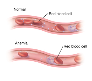 Cross section of blood vessel with normal amounts of red blood cells. Below it is another cross section of blood vessel showing too few red blood cells because of anemia.