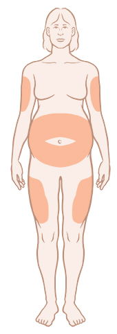 Front view of pregnant woman with insulin injection sites.