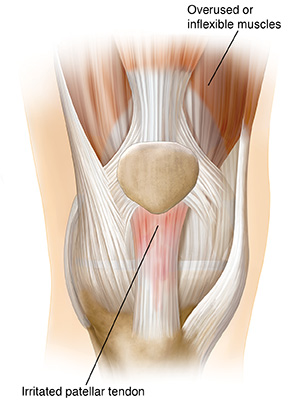 Front view of knee joint showing inflamed patellar tendon.