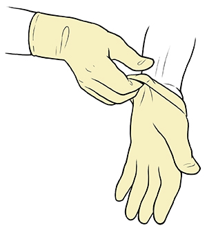 Gloved hand pulling sterile glove up to wrist of opposite hand.