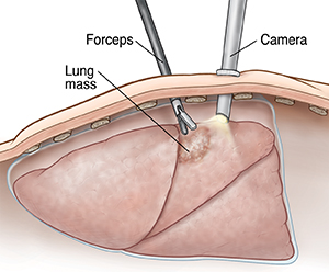 Cross section of body wall showing camera inserted in chest while forceps takes sample from lung mass.