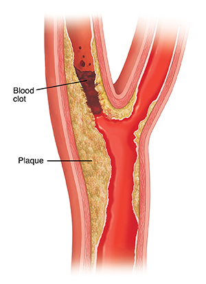 Cross section of carotid artery showing plaque buildup and blood clot.