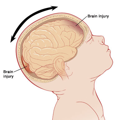 Side view of baby with head tilted back, showing brain inside. Arrows show head moving back and forth, and injuries at front and back of brain.