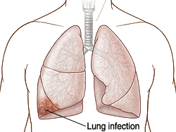 Front view of chest showing lungs with infection.