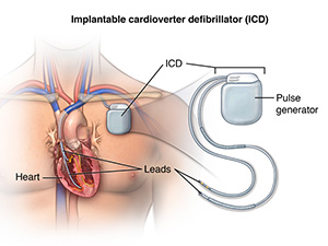 Illustration showing the ICD device and the location when placed in the chest