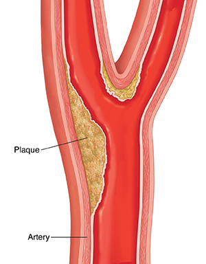 Cross section of carotid artery showing plaque buildup.