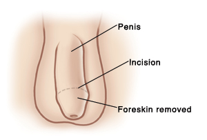 Front view of penis and scrotum. Line around head of penis shows circumcision incision. Foreskin at tip of penis is removed.