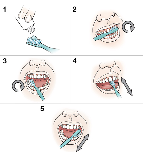 5 steps in proper toothbrushing