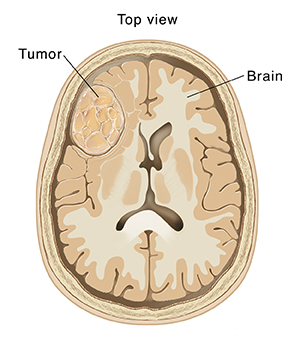 Top view cross section of brain showing tumor.