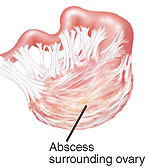 Abcess surrounding ovary