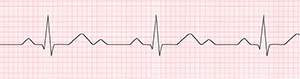An ECG recording of a regular heartbeat.