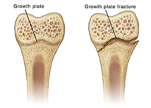 Cross-section of bone showing a growth plate and fractured growth plate