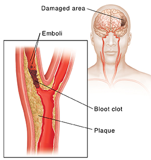 Blood clot blocking carotid artery and emboli breaking off clot. Inset shows damage to brain.